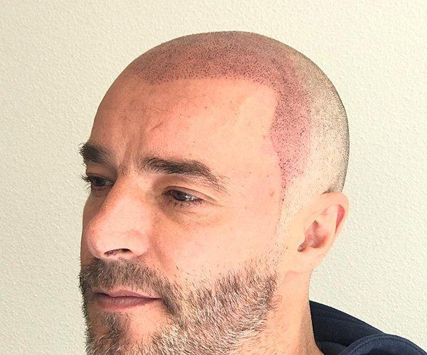 scalp01