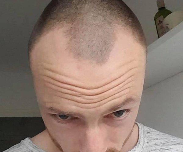 scalp02
