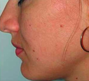 Acne-and-post-acne-scars-2-ETCA-after