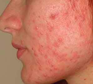 Acne-and-post-acne-scars-2-ETCA-before